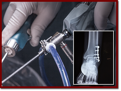 arthroscopy with an inset image of an ankle x-ray